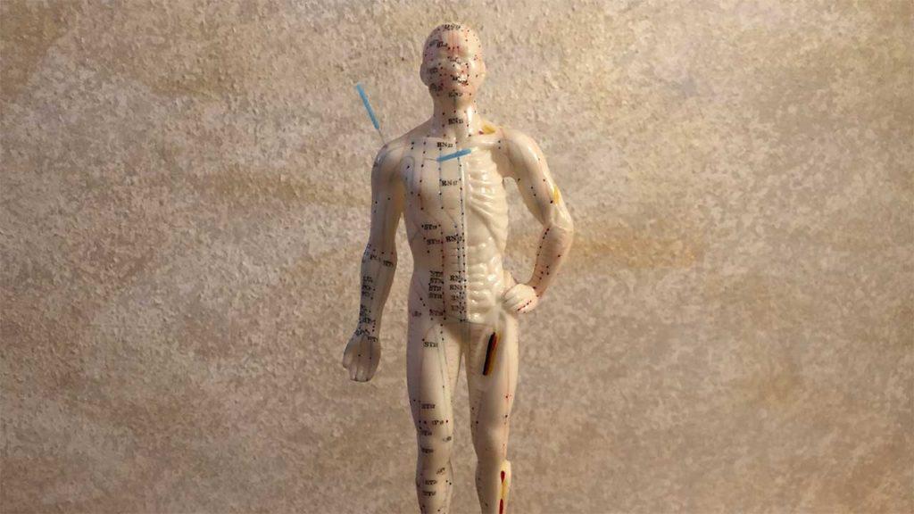 Akupunktur - Nadeln